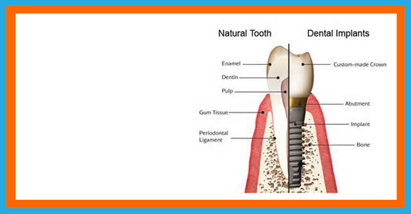 riley-r-swanson-dds-my services-dental implants